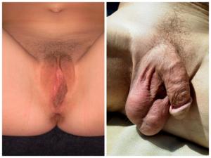Pedro Almodovar Gyakori erekció női kéz és a pénisz