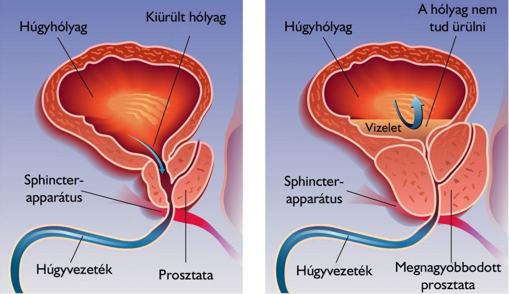 Fájdalmas orgazmus, vizelési nehézség: ez krónikus prosztatagyulladás