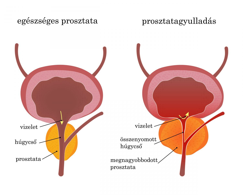 Hosszú erekció és prosztatagyulladás