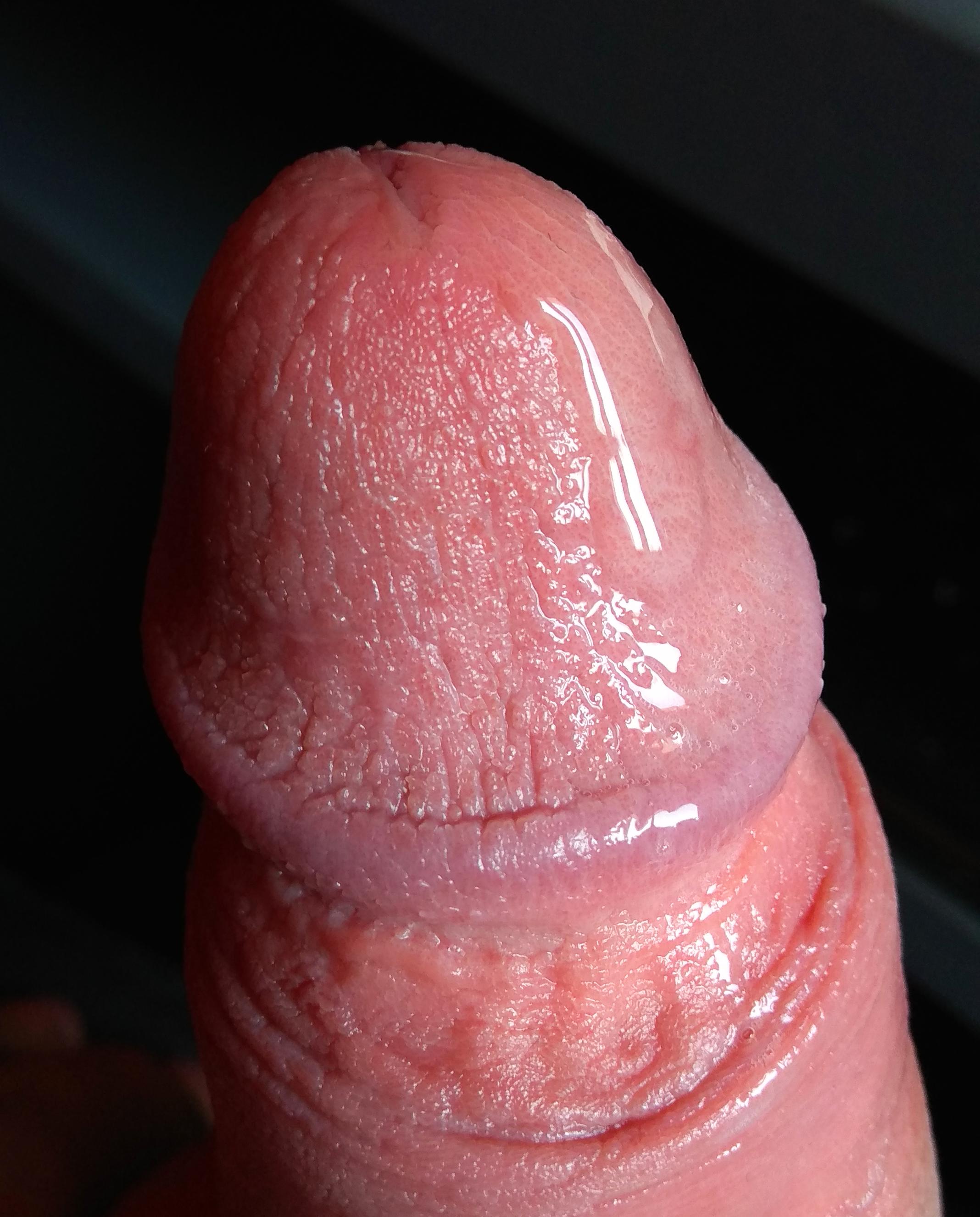 pénisz az erekció előtt és alatt
