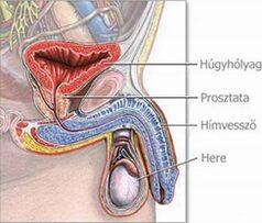 mik a betegségek a péniszen hogyan lehet természetes módon erősíteni az erekciót