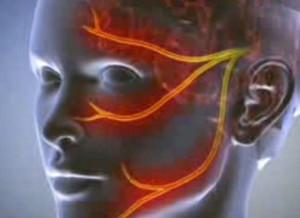 merevedés során a fej pirosra vált