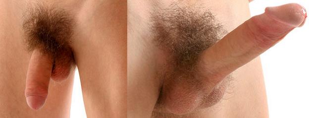 fotó a pénisz erekciója előtt és után
