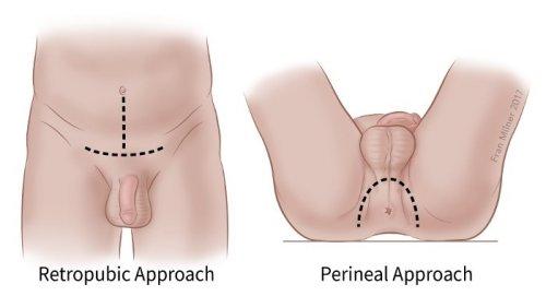 az erekció helyreállítása orgazmus után