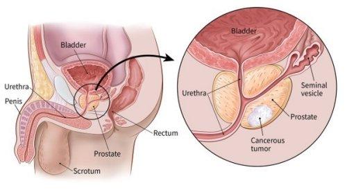 hogyan befolyásolja a prosztata az erekciót a nővel való erekció hiányának oka