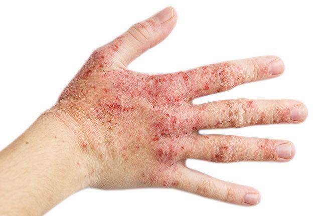 Ha baj van a koronaékszerekkel – férfiak intim bőrbetegségei