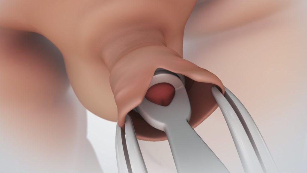 hogy az óvszer hogyan hat az erekcióra