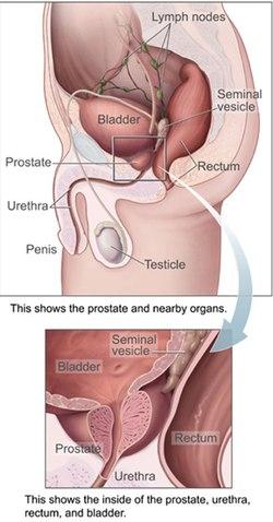 erekció a prosztata sugárterápiája után