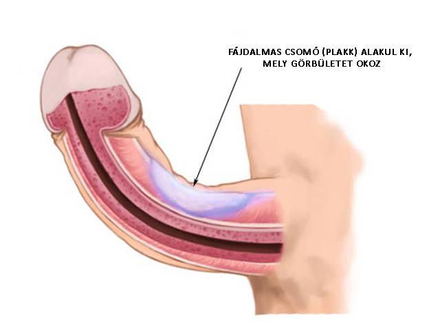 a pénisz görbülete oldalra merevedési ravaszt