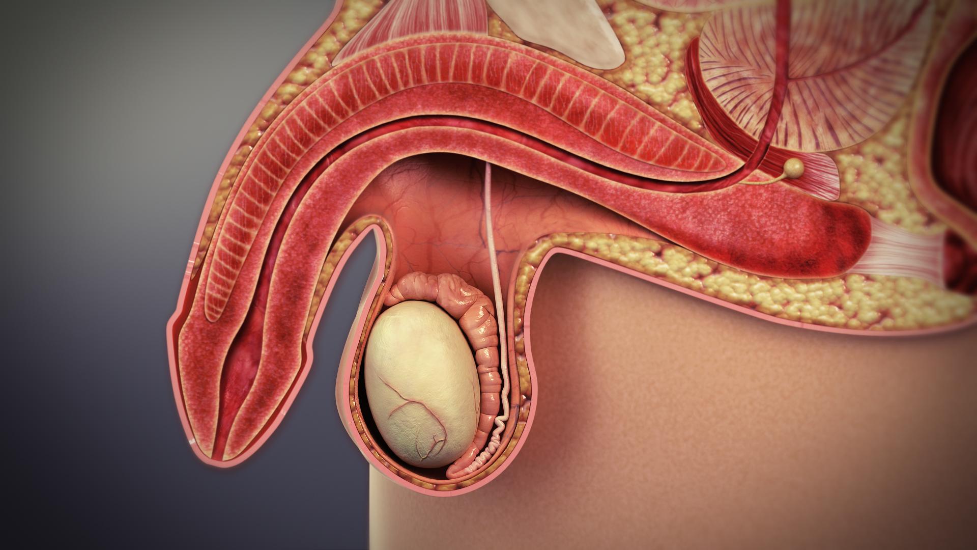 Fitymaszűkület (phimosis) - Tünetek, okok, kezelés