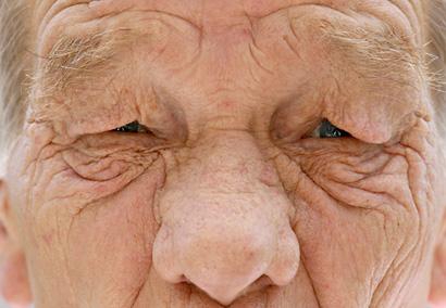 Hímvessző előbőrének gyulladása