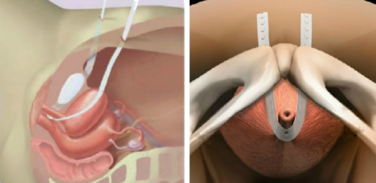 kis pénisz műtét