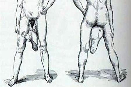 Íme, a férfi, aki két pénisszel él | hu