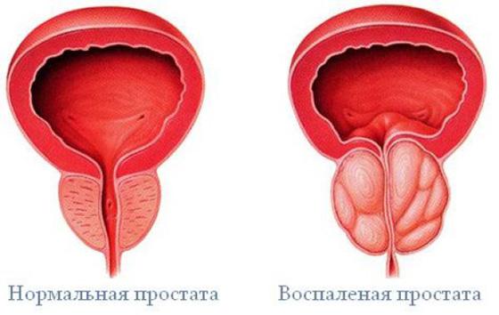 az erekciós prosztatagyulladás gyengülése