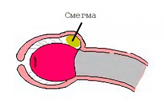 triderm és pénisz közösülés során az erekció alábbhagy