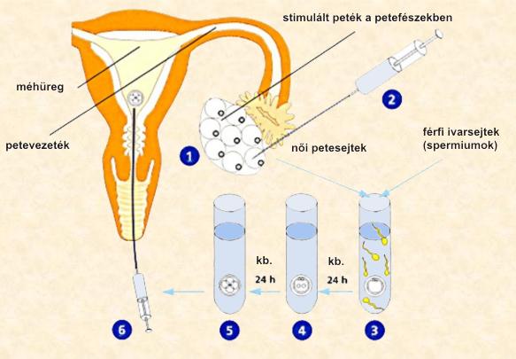 elveszett erekció és érzékenység Orosz gyógyszerek az erekció javítására