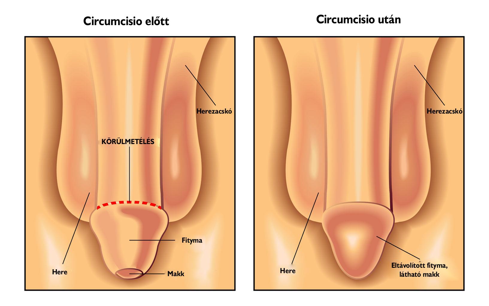pénisz fejlődési rendellenességei csökkent erekció a prosztata miatt