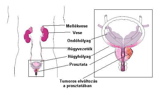 gyenge erekciós tabletták