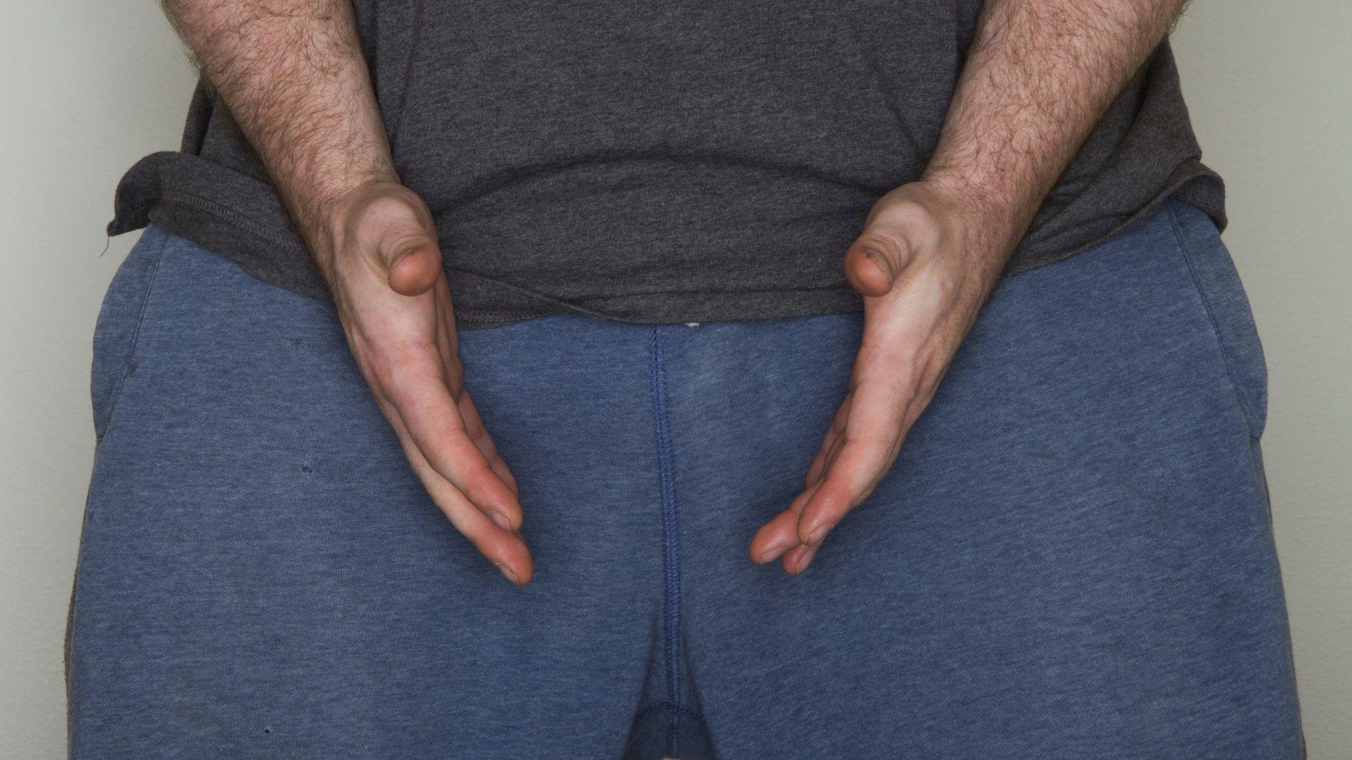 a masztiff péniszét férfiak pénisz nélkül