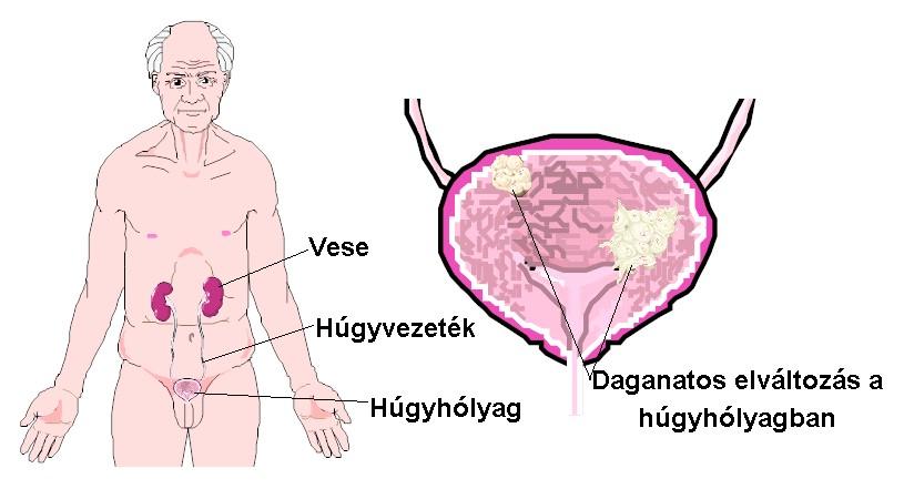 prosztatagyulladás és merevedési zavar kezelése lányok fóruma a péniszről