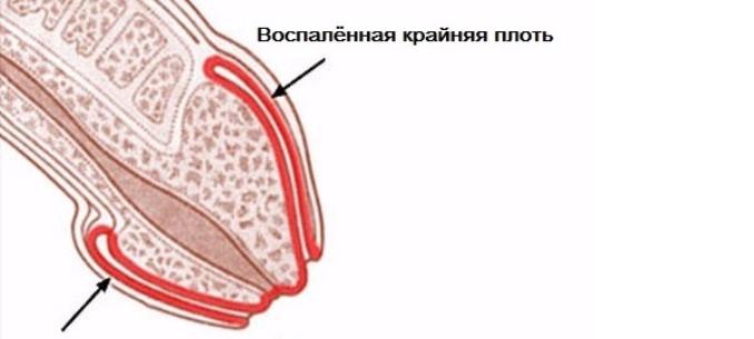 Gumó közvetlenül a pénisz felett - EgészségKalauz