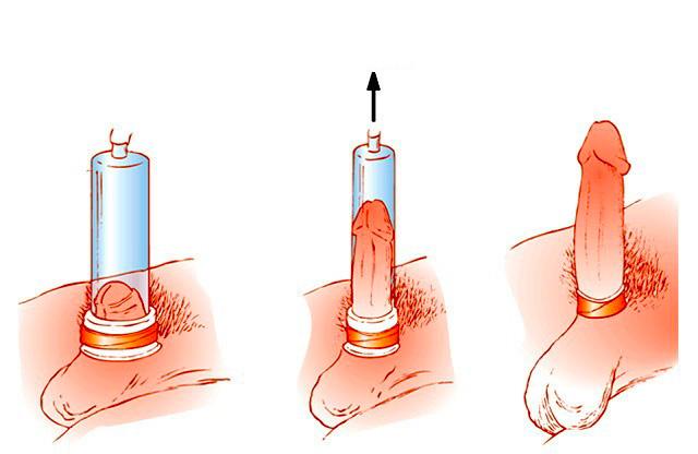 hogyan kell használni a pénisz vákuumot