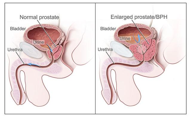 prosztatagyulladás esetén merevedés van, de nincs magömlés férfi péniszek az orvosok számára