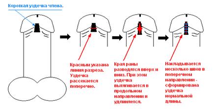 Fityma – Wikipédia